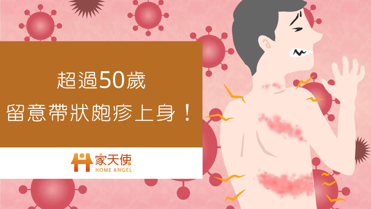 超過50歲,留意帶狀皰疹上身!|家天使-找看護的第一選擇