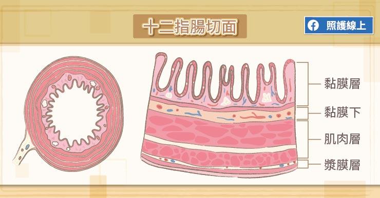 12指腸癌