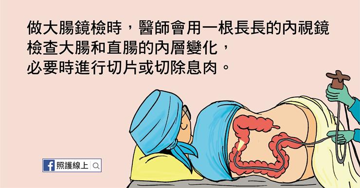 大腸鏡檢查內視鏡