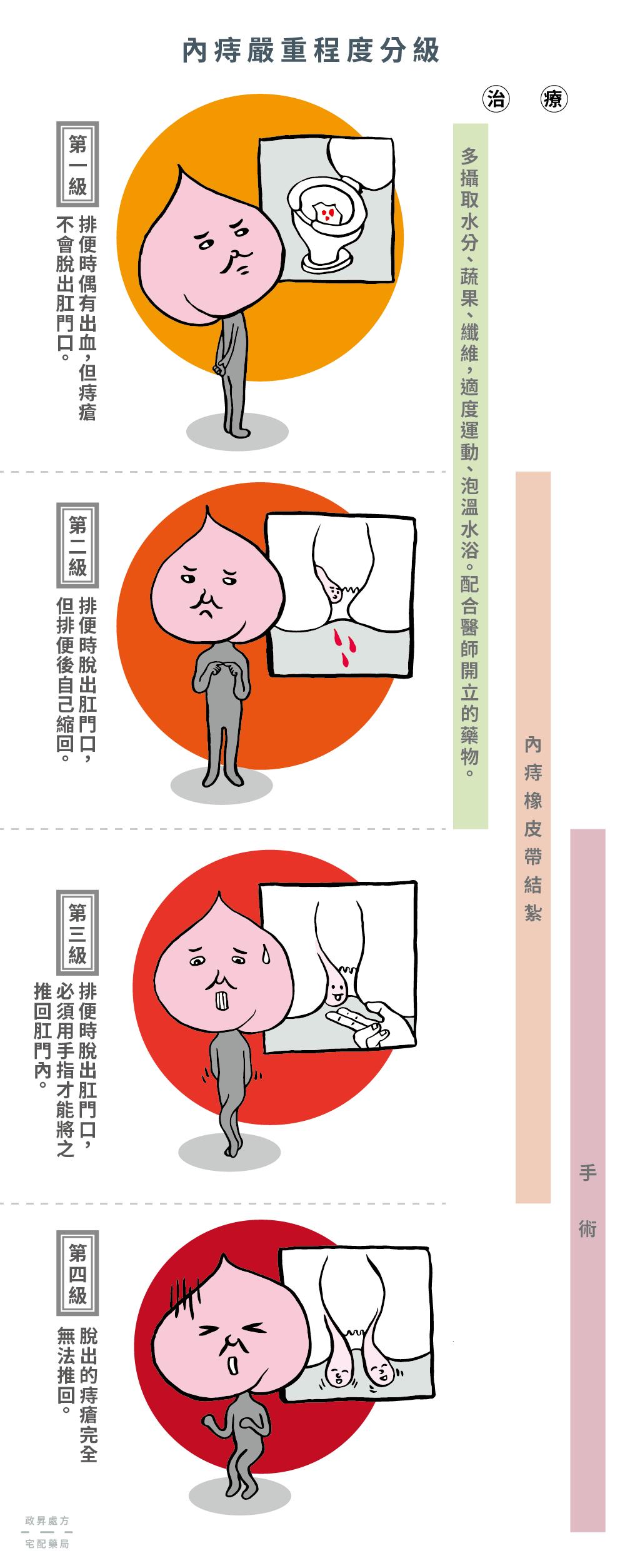 痔核 治療 外