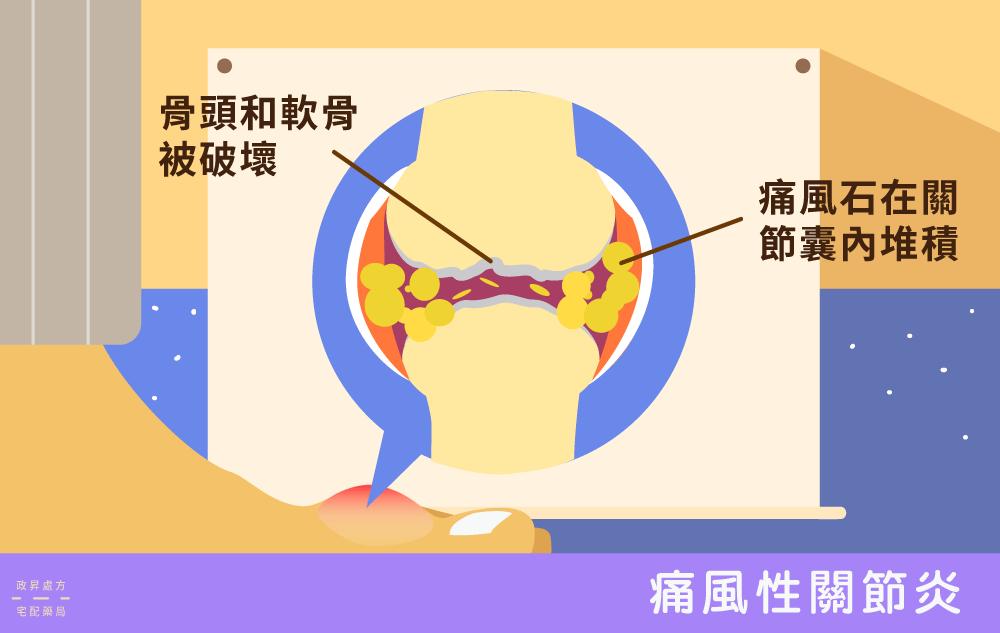 痛風性關節炎