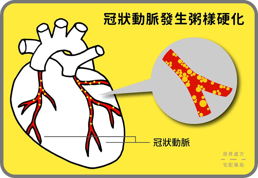 冠狀動脈粥樣硬化示意圖