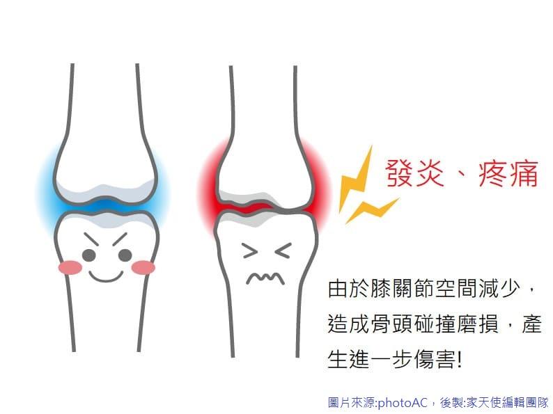 膝關節退化