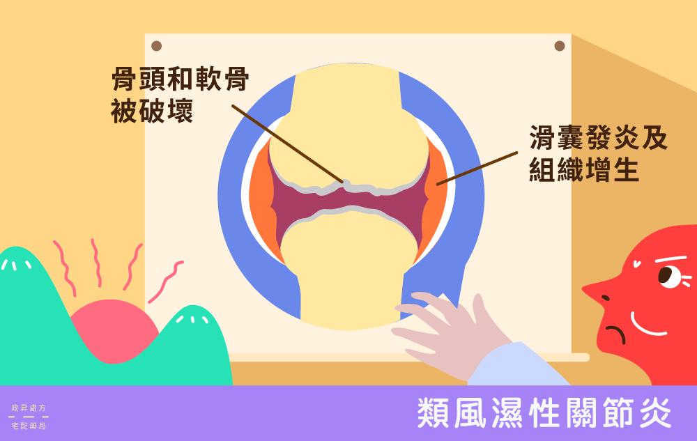 類風溼性關節炎