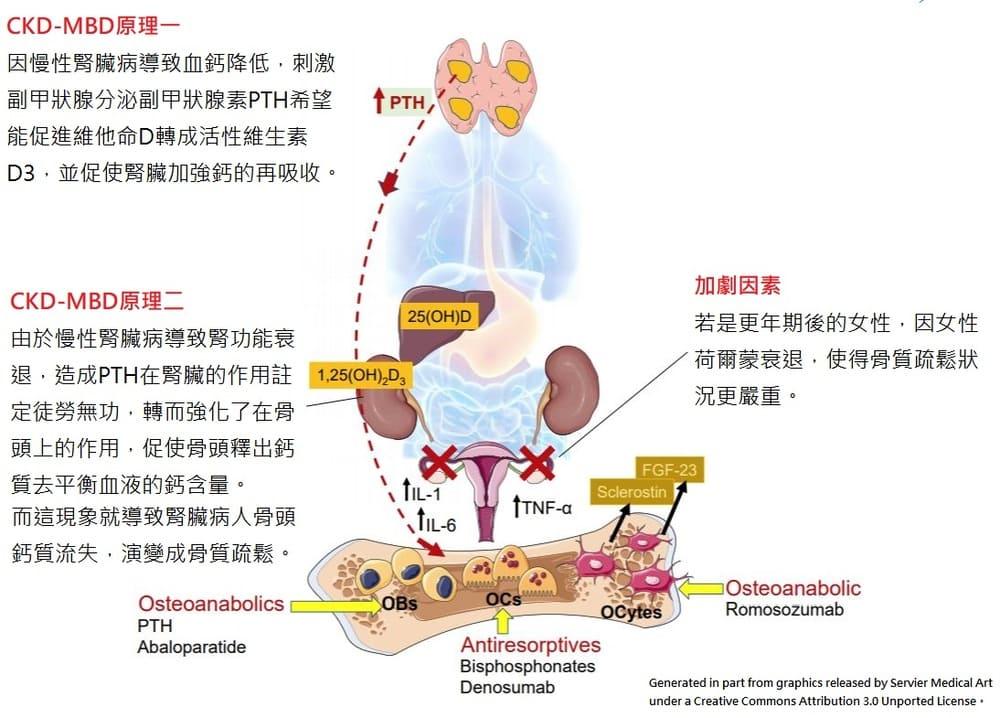 骨質疏鬆與慢性腎臟病
