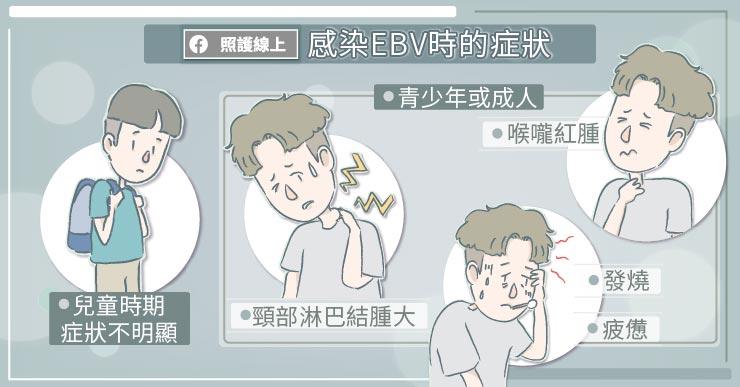 EBV皰疹病毒