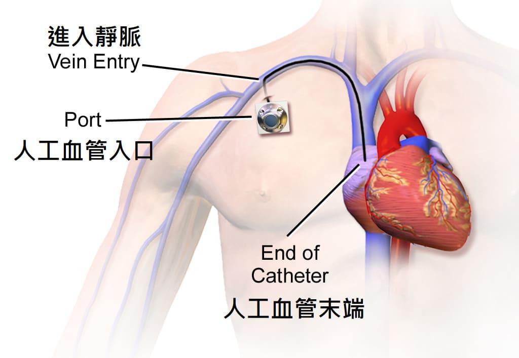 人工血管示意圖(翻譯自wikimedia)