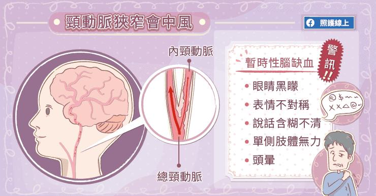 頸動脈狹窄