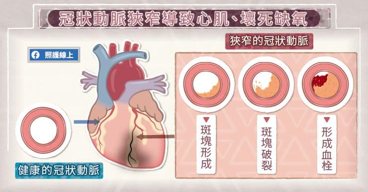 冠狀動脈狹窄