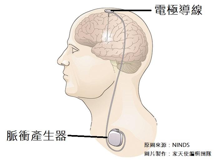 深腦部刺激術DBS